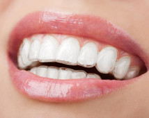 dott.ssa G. De Giglio<br /><div><h5>Odontoiatra &#8211; Ortodontista</h></div>