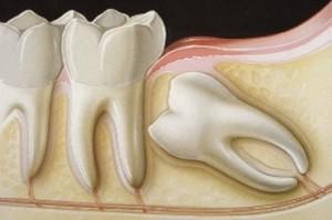 Chirurgia_OraleTerapie