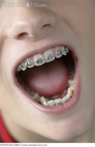Widely open mouth with braces on teeth in detail
